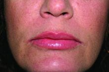 After Juvederm Ultra Plus