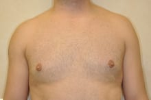 after gynecomastia treatment of male breast reduction Knoxville