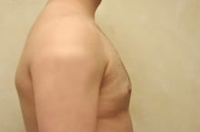 after treatment of male breast enlargement gynecomastia Knoxville