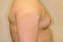 before and after treatment of male breast enlargement gynecomastia
