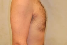 12429 after gynecomastia surgery side