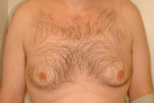 12429 before gynecomastia surgery front