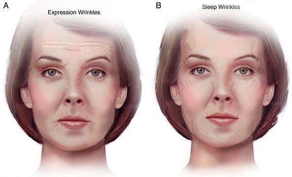 Wrinkles from sleep