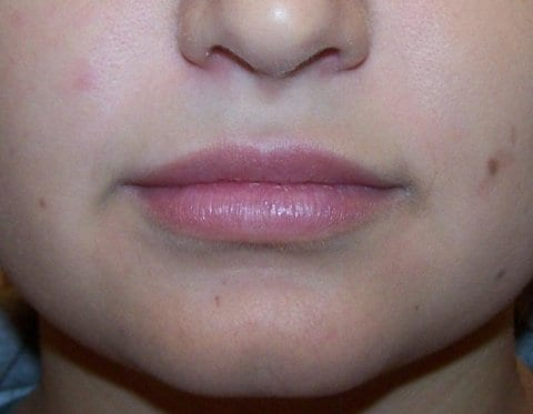 after Juvederm to the lips