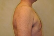 12428_after_gynecomatia_side