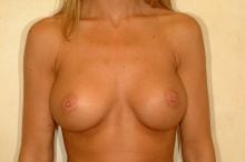 Breast Augmentation in Knoxville, Tennessee by Dr. David Reath- after saline implants under the muscle