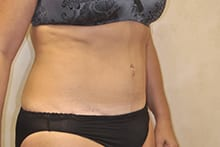 Before-After-Tummy-tuck-Knoxville-Reath_(5)
