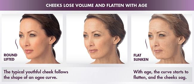 Juvederm Voluma How it works